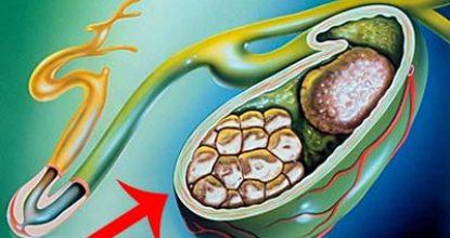 Желчекаменная болезнь: причины, признаки, симптомы у взрослых и лечение ЖКБ